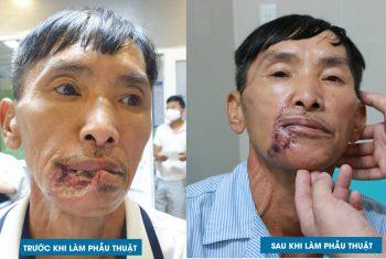 Phẫu thuật tạo hình vi phẫu chuyển vạt che khuyết hổng vùng đầu mặt cổ tại khoa Liên chuyên khoa – Bệnh viện đa khoa Hùng Vương